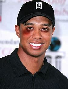 Image result for tiger woods after the beating his wife